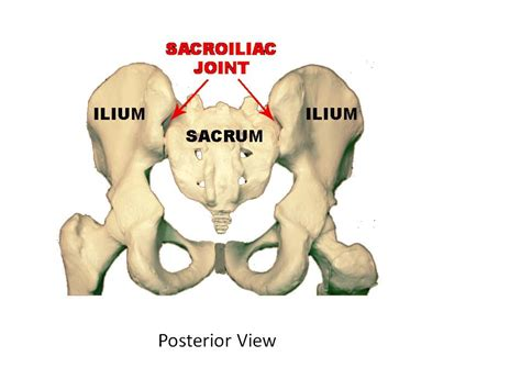 facet joint pain and stabilization picture 1