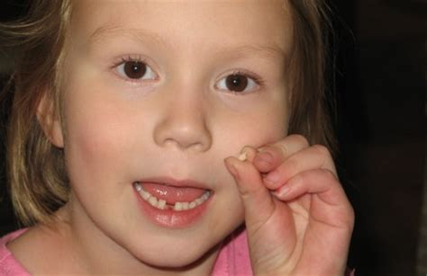 child's health loose teeth picture 2