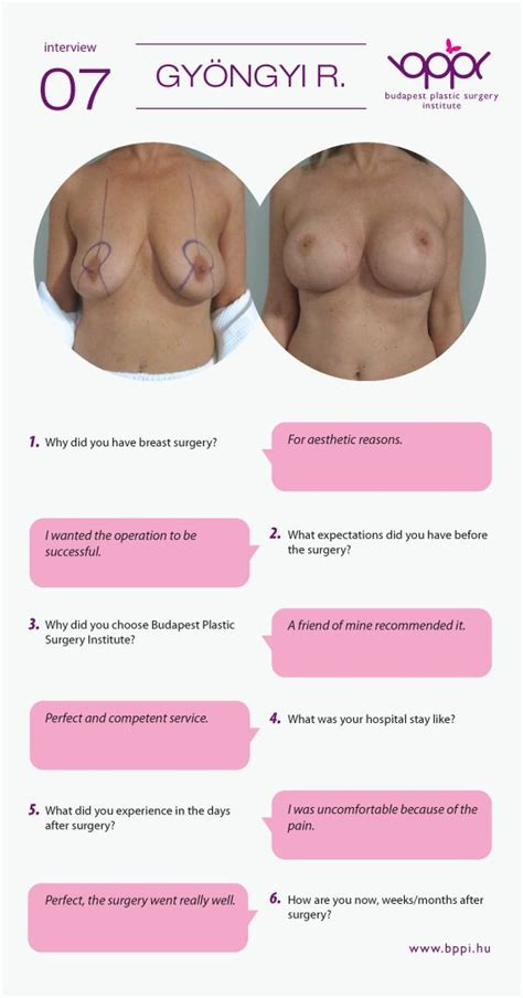 breasts before and after pregnancy pictures picture 7