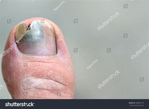 nail fungus cover up for men picture 9