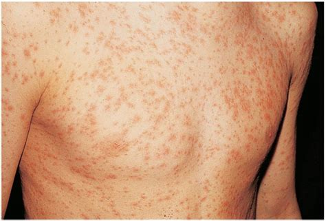 genital herpes sores pictures picture 9