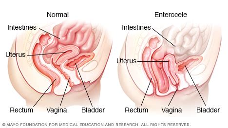 contact dermais near vaginal opening picture 9