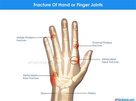 joint pain in hands picture 9