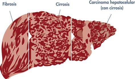 anong sintomas liver cancer picture 14