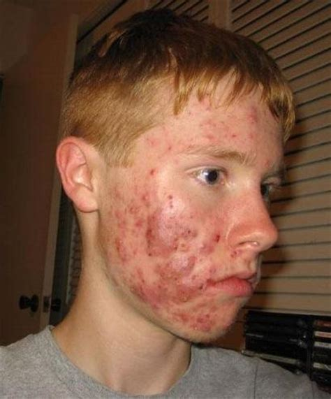 cystic acne around cheeks picture 10