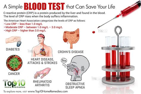 causes of high blood protein picture 6