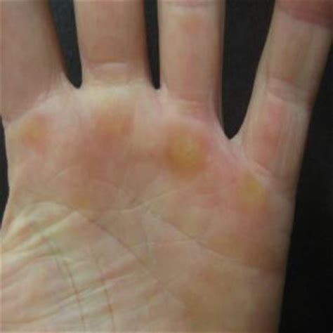 how to remove thicken hand skin from exema picture 7