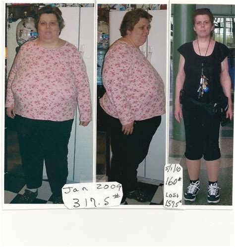 wellbutrin xr and weight loss picture 13