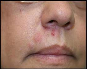 mistaken herpes symptoms picture 14