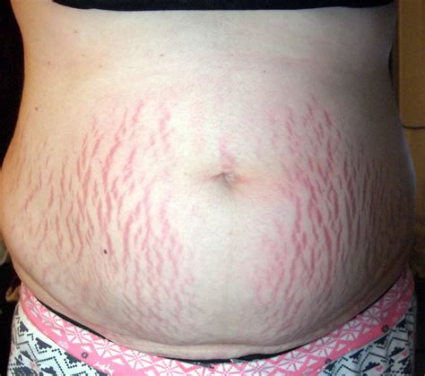 what will happene to my stretch marks using picture 15