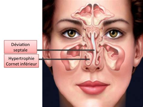 Ayurveda+To reduce mucus picture 18