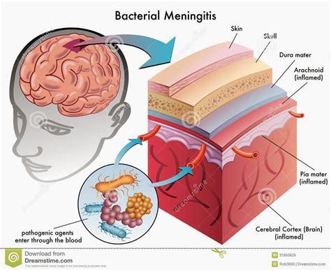 bacterial mengingitis picture 2