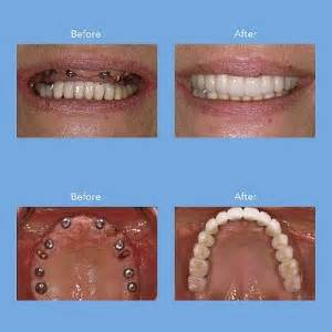cost of teeth implants picture 2