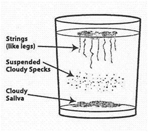 skin floating urine picture 19