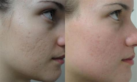 co2 laser acne scar treatment picture 6