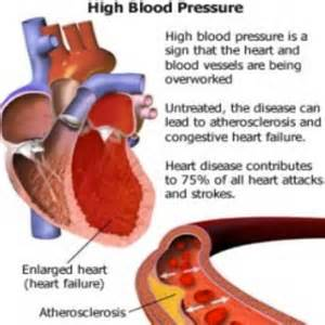 Effects of high blood pressure picture 2