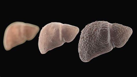 testosterone and ulceritis colitis picture 14