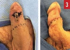 circumcised penis picture 9