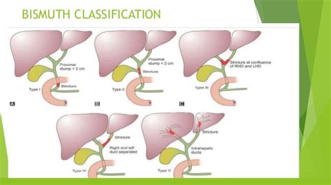 gall bladder disorders picture 11