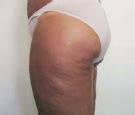 cellulite treatment new york city picture 9