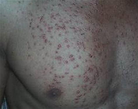 yeast infection and folliculitis picture 19