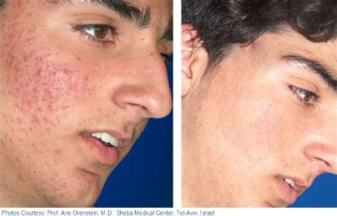 laser surgery for acne picture 5