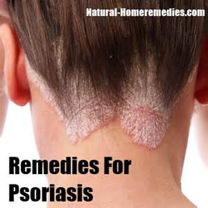 herbal remedies psoriasis picture 3