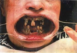 dentist take out your back teeth picture 3