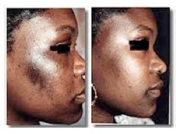 african american skin microdermabrasion picture 1