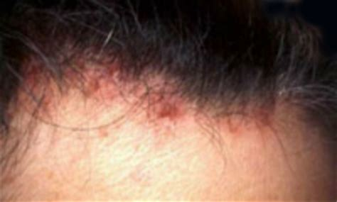 acne scalp picture 6