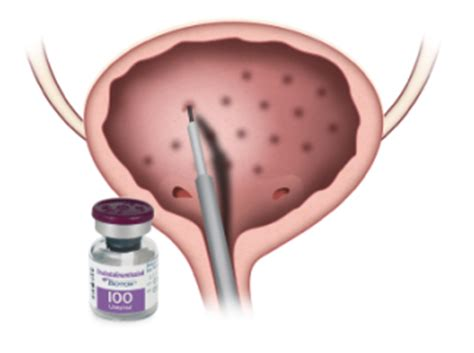 botox for overactive bladder picture 2