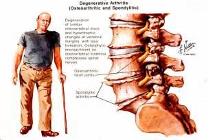cream for degenerative spine disease picture 7