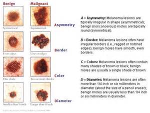 abcs of skin cancer picture 7