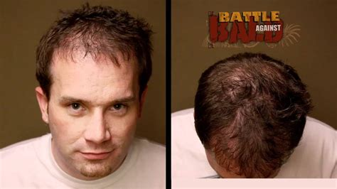 boslely hair restoration picture 9