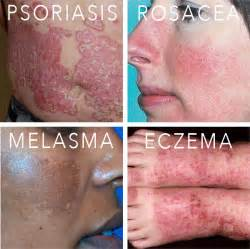 lupus and acne skin problems picture 13