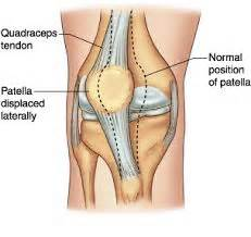 ac joint arthritis picture 13