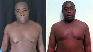 the result for men ith big breast after the use of picture 1