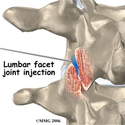 cervical facet joint procedure picture 14