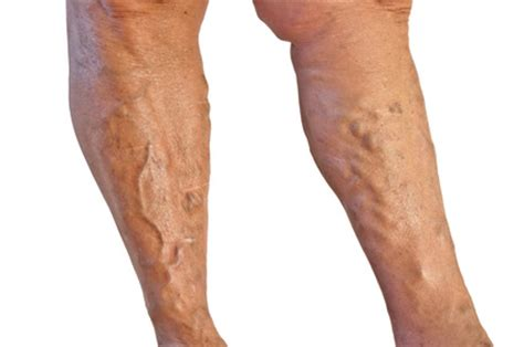 veracose veins and cellulite picture 10