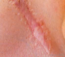 hip replacement skin scar tissue picture 10