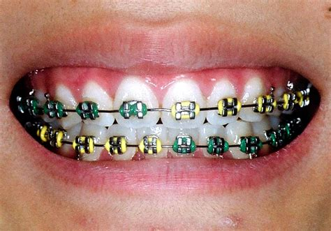 colored braces teeth picture 3