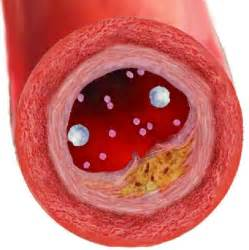 Effects high cholesterol picture 3