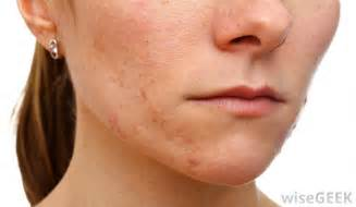 please help black female with acne spots on picture 1
