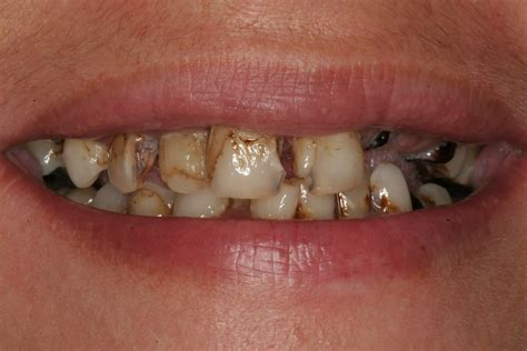 and your teeth picture 11