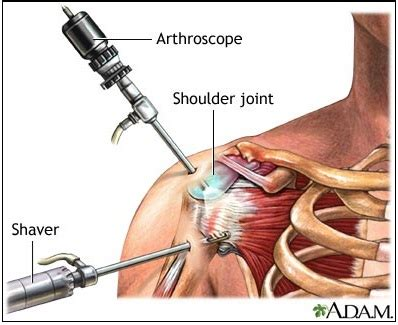 shoulder blade psin during detox picture 2