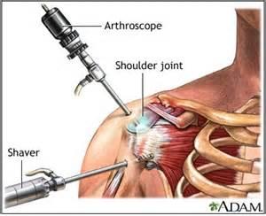 shoulder blade psin during detox picture 3