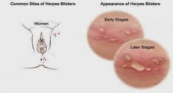 herpes breakout picture 10