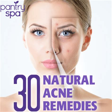 natural acne cures picture 10