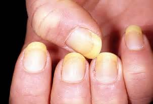 infections/fungus up under acrylic nails picture 2