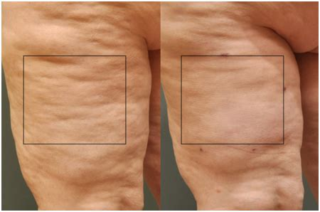 cellulite and water treatment picture 3
